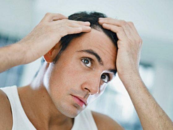 Учёные установили генетические причины облысения у мужчин »