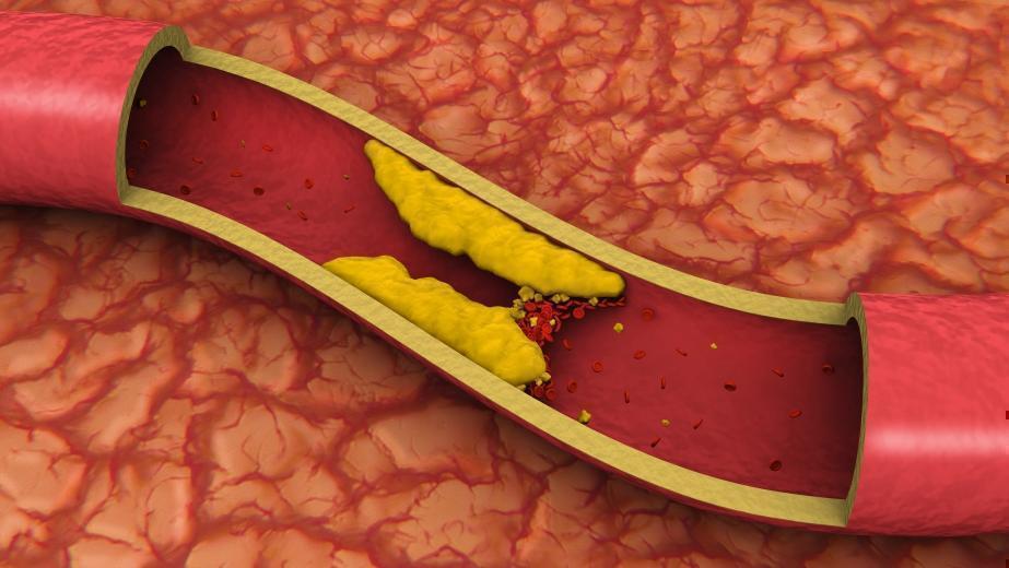 Назначение статинов при повышенном холестерине