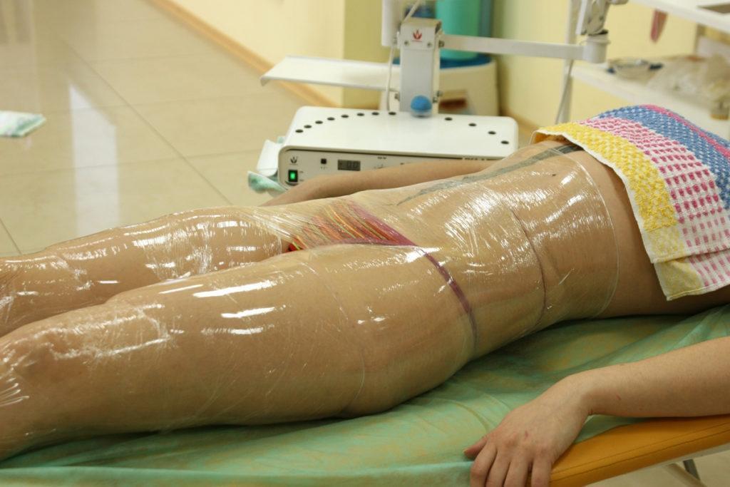 В спа-салоне клиентку заживо запекли во время процедуры