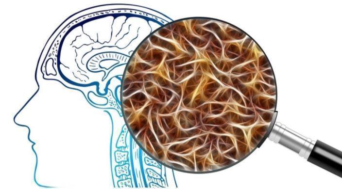 Ученые назвали признаки болезни Альцгеймера на ранней стадии 1