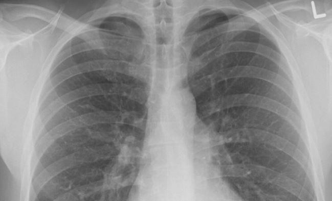 Онколог назвал основные симптомы рака легких 1