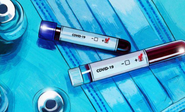 Вирусолог предупредил о «более жесткой» второй волне COVID-19 в РФ 1