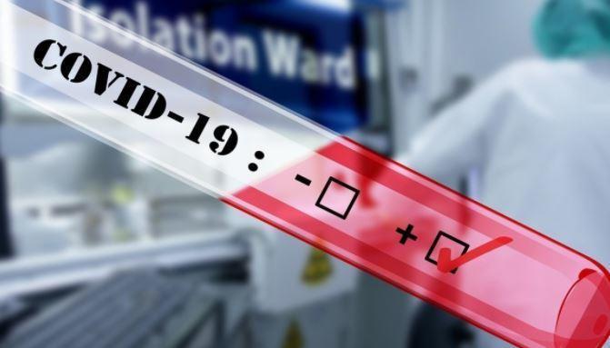 Инфекционист призвал не сбивать повышенную температуру при COVID-19 1