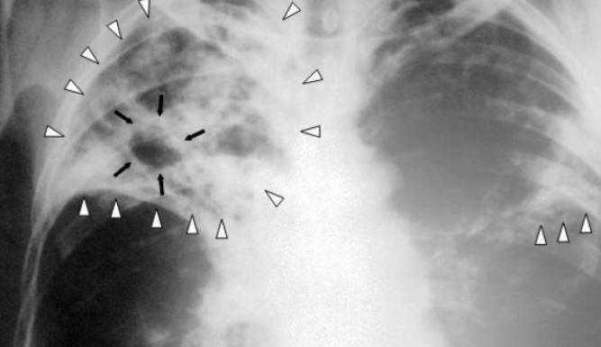 Носители туберкулеза быстрее справляются с коронавирусом 1