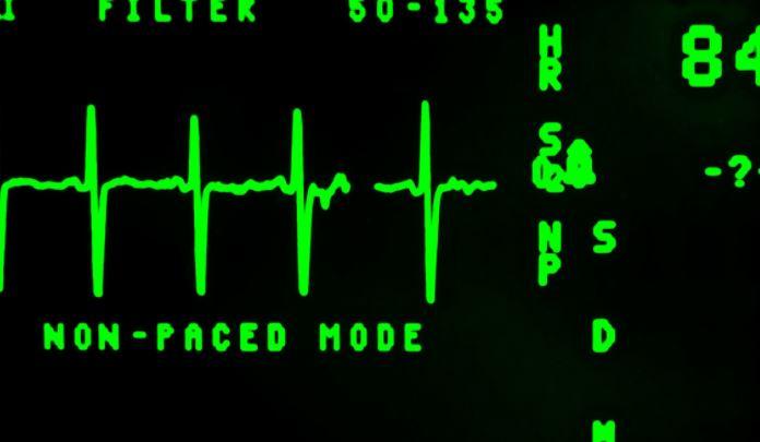 Российские кардиологи рассказали о симптоматике инфаркта 1