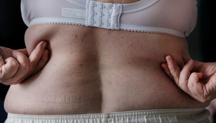 Эндокринологи выявили пользу лишнего веса для женщин 1