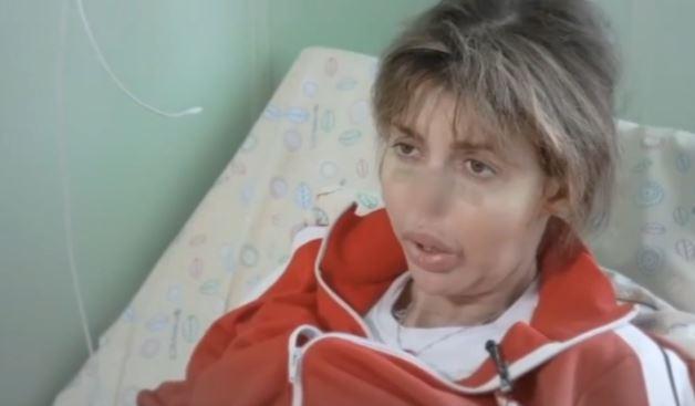 Малахов показал жуткие фото страдающей от некроза носа экс-жены Андрея Аршавина 2