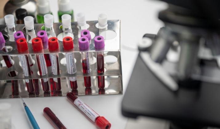 """Ученые назвали """"большой шумихой"""" теорию о связи группы крови с тяжестью COVID-19"""
