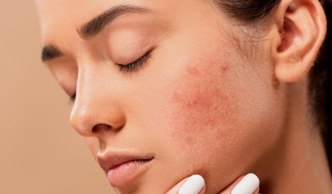 Косметолог перечислил возможные последствия коронавируса для кожи и волос