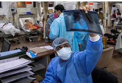 Индийский штамм коронавируса начал приводить к гангрене