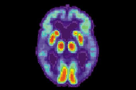В исследовании болезни Альцгеймера сделан прорыв