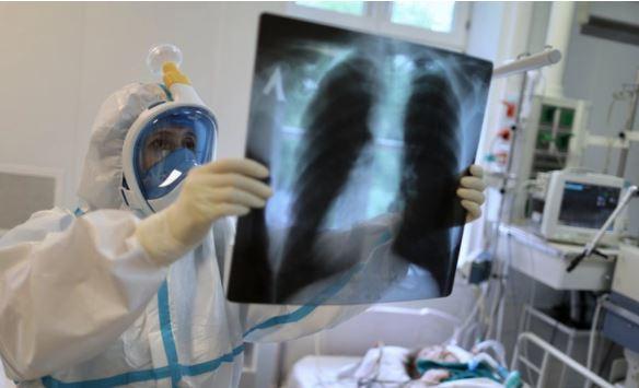 Ученые из США выяснили, сколько длятся негативные последствия после COVID-19